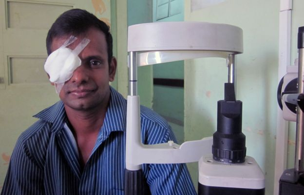 Sri Lanka Eye Donation_3
